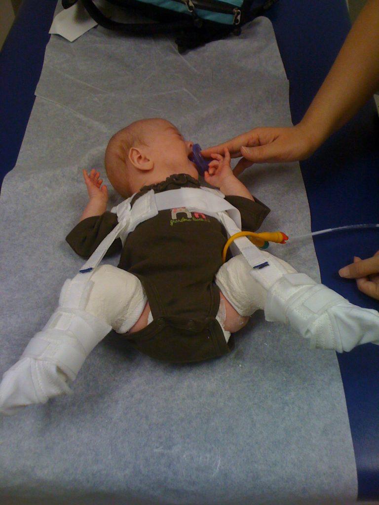 Bebê recebe tratamento para pés tortos: sapatinhos especiais para o período noturno devem ser usados