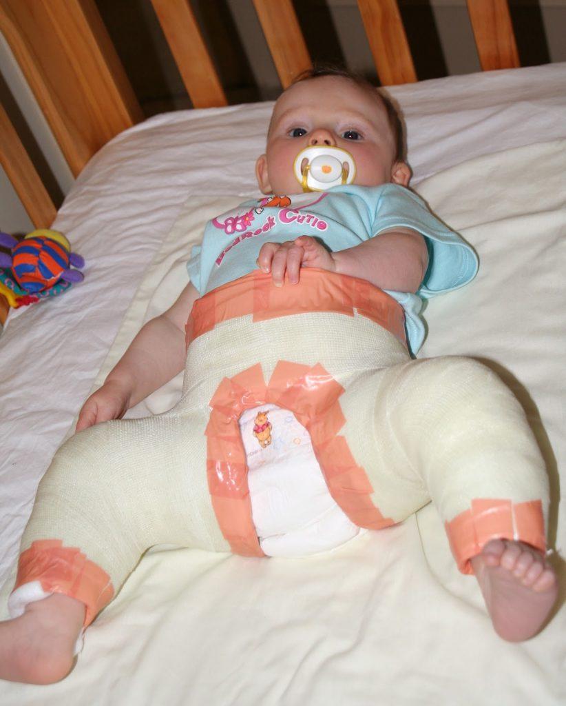 Bebê com gesso para curar DDG: causas ainda são desconhecidas