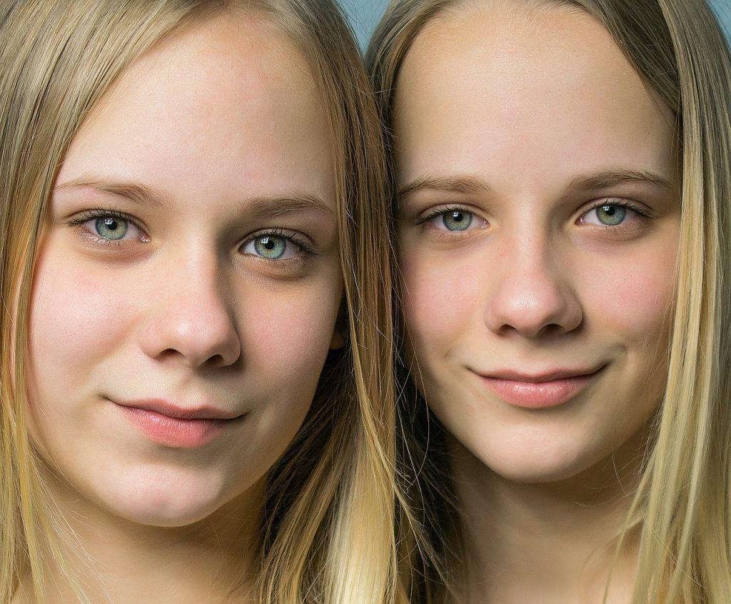 Irmãs gêmeas sorriem em foto: sobre a restrição de crescimento seletivo do tipo um, apesar da diferença de tamanho entre os nenês, o fluxo de sangue no cordão umbilical dos fetos ocorre normalmente